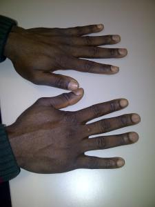 Karls Hands
