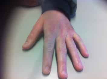 Chris hand (1)
